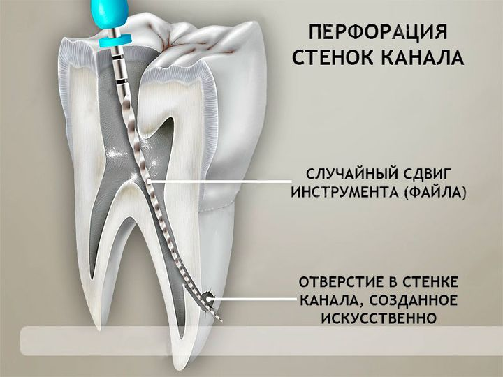 Перфорация зубного корня