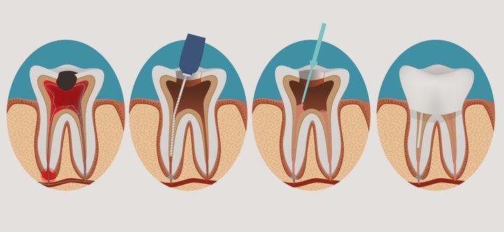 Чистка зубного канала