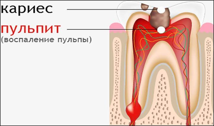 Болезни зуба
