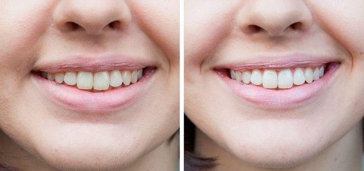 До и после отбеливания