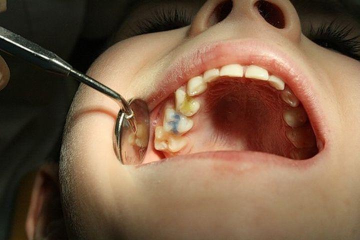 Как выглядит мышьяк в зубе