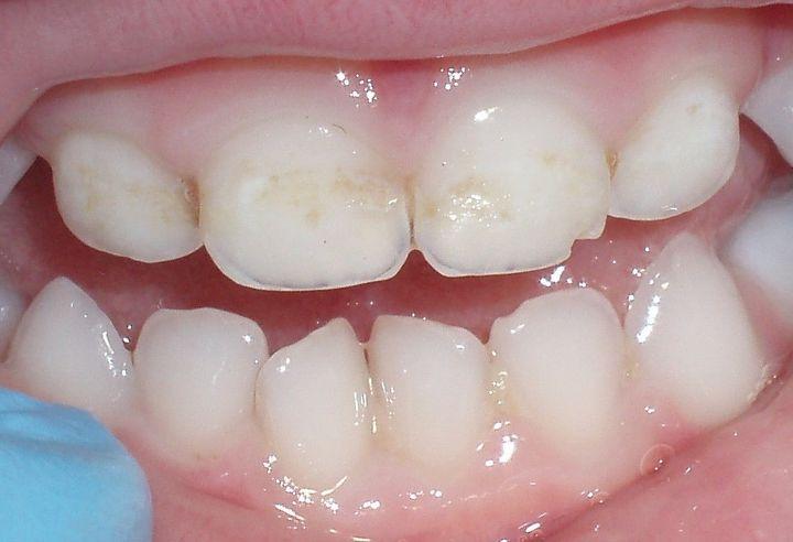 Изменение цвета эмали на молочных зубах