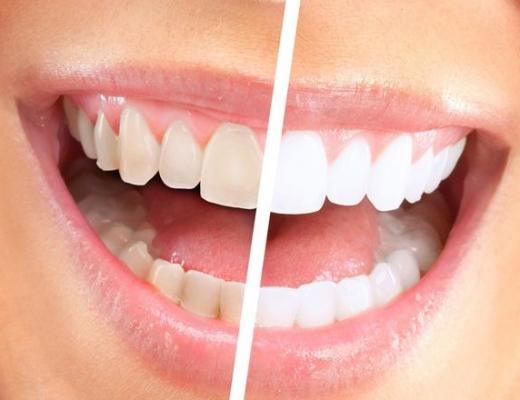 Чистка зубов Air Flow - что это такое, отзывы