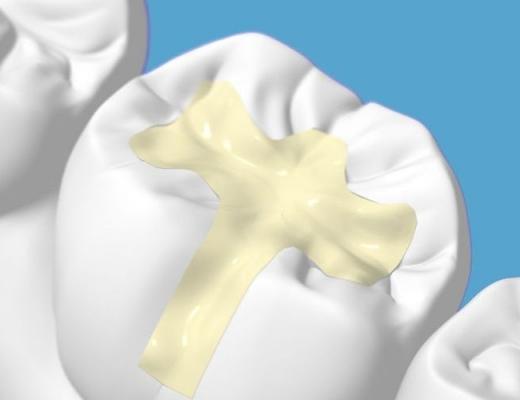 Виды пломб для зубов
