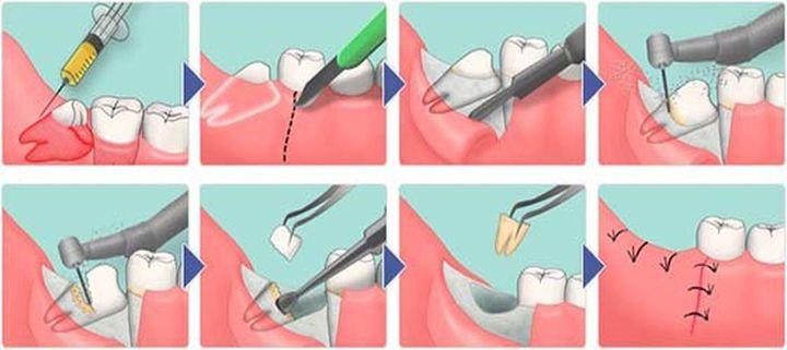 Процесс удаления зуба мудрости и зашивания десны