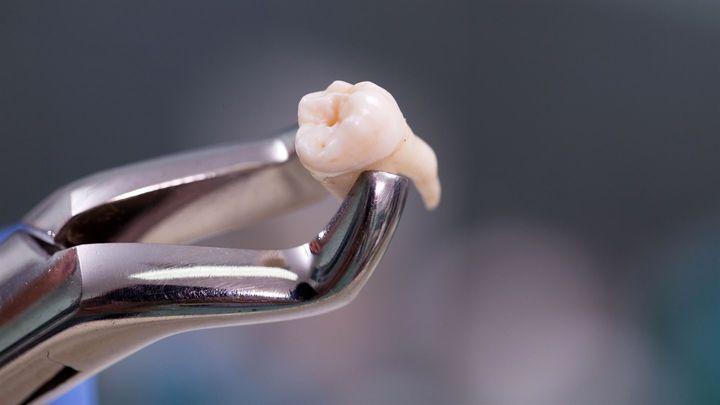 Удаление мертвого зуба