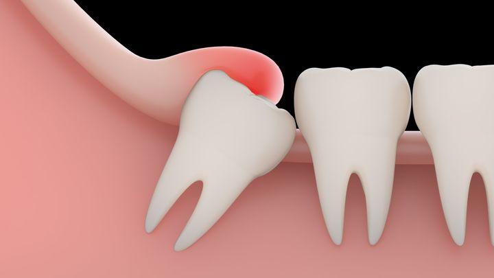 Воспаление десны при прорезывании зуба мудрости