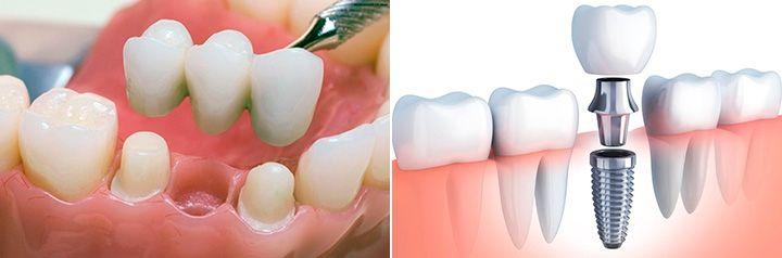 Установка коронки на зуб и на имплант