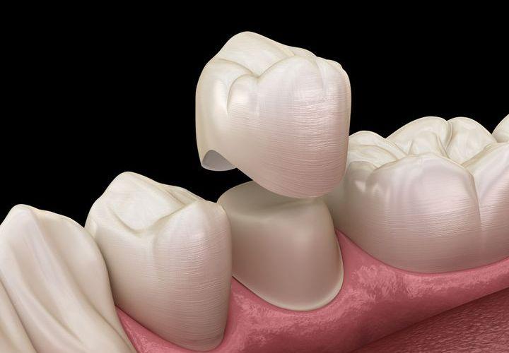 Какие лучше коронки ставить на жевательные зубы