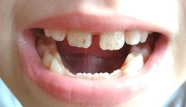 Пятна на эмали молочных зубов
