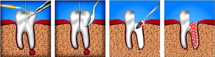 Как вылечить кисту на зубе без удаления зуба thumbnail