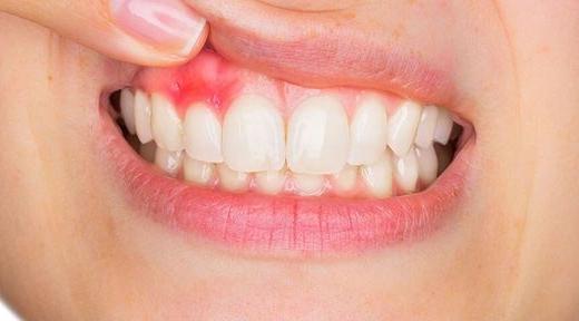 Периостит зуба: симптомы и лечение