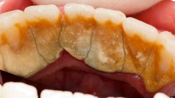 Запущенный вариант зубных отложений
