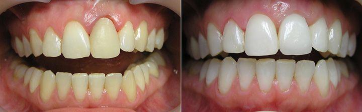 Лечение оголенных корней зубов: фото до и после