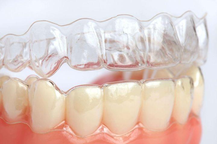 Как выглядят элайнеры для зубов