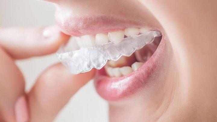 Ношение элайнеров для зубов