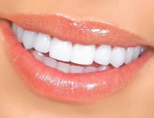 Выравнивание зубов дома