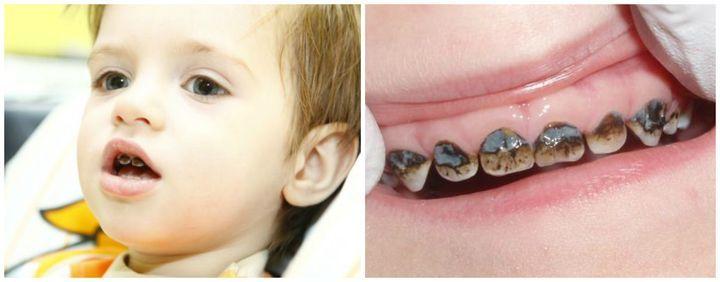 Как выглядят посеребренные зубы на фото
