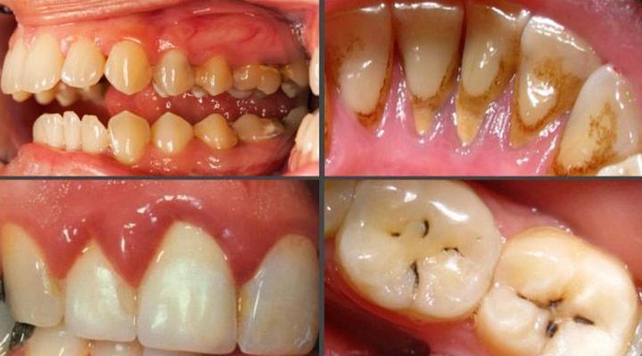 Проблемы с зубами, если их не чистить