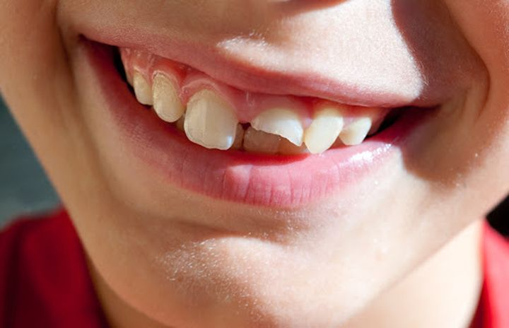 Сколы на зубах у ребенка