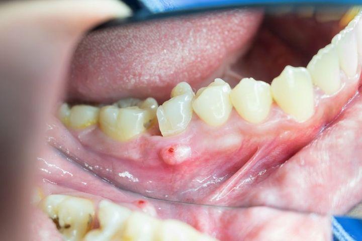 Нарыв на десне возле зуба