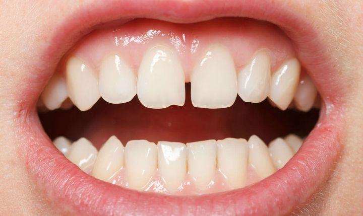Диастема - щель между зубами