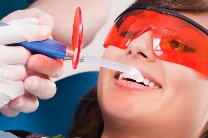 Процесс профессиональной чистки зубов