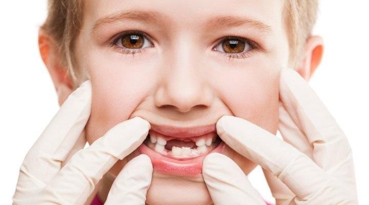 Рост постоянных зубов