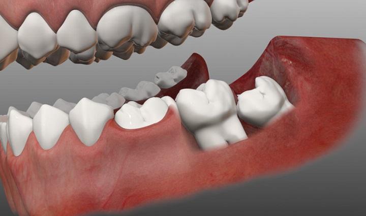 Рост зубов мудрости