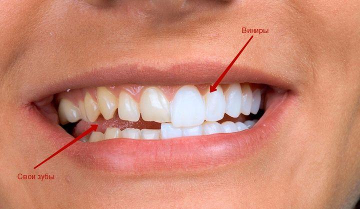 Виниры и свои зубы