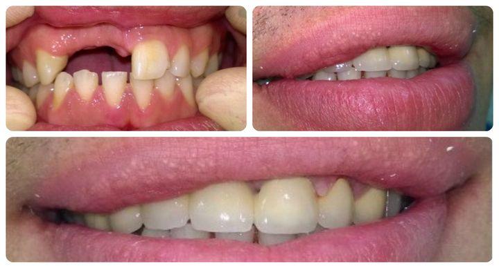 Установка виниров, когда нет зубов